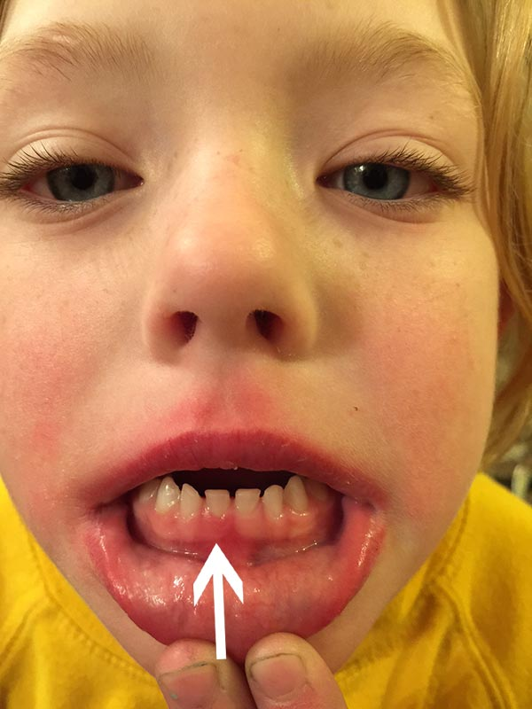 See this one looks like the big tooth is pushing up to get rid of the baby tooth. It is very swollen and looks very sore. This little girl is excited she might lose the tooth soon.