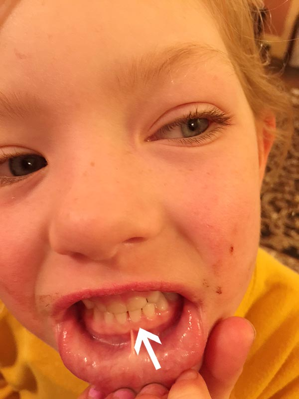 This little one says the tooth that is next to the one her sister is having issues with hurts. You can sort of see the big tooth in the gum coming up but it is not as red and swollen as the other one. Maybe this will happen in time.