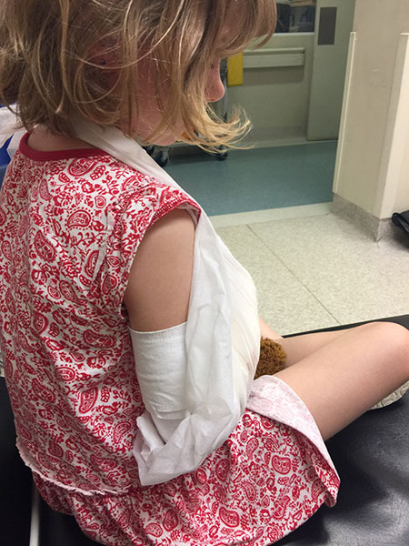 Lillian with her first plaster on after getting all bones aligned. They put it up the arm to restrict movement from the elbow down.