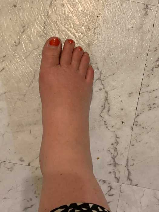 My swollen foot from being bitten by a spider. Forgive the neglected toenails as I have been exhausted with kids and life and now a sore foot!